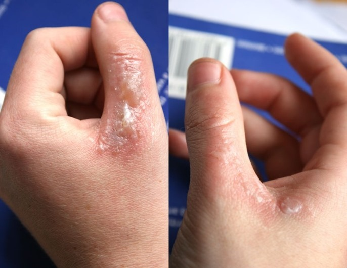 skin-condition