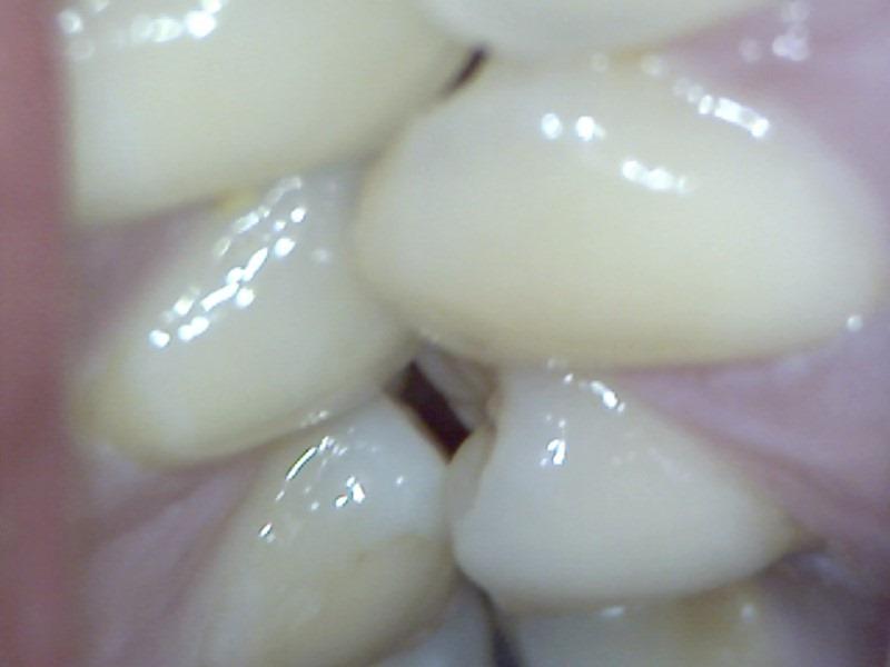 teeth-in-contact